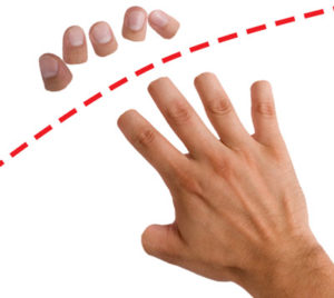 Human hand declawed